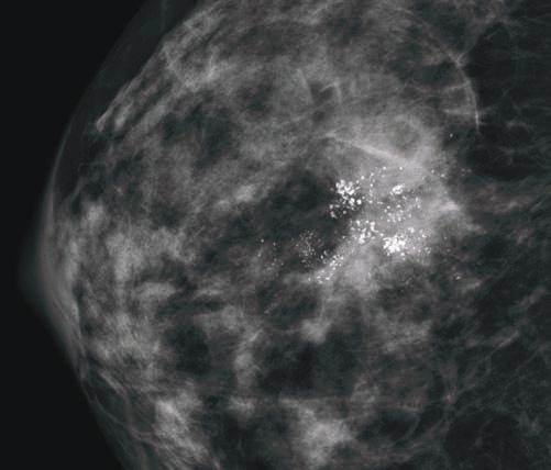 رسوبات کلسیم در ماموگرافی (DCIS)